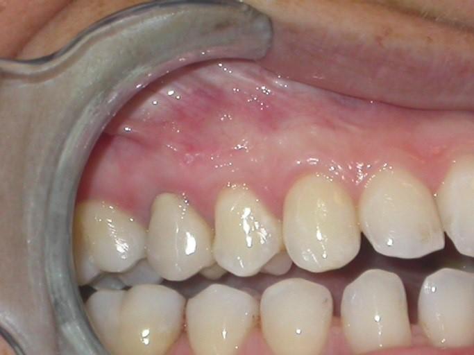 Chirurgia gengivale Dentale Roma