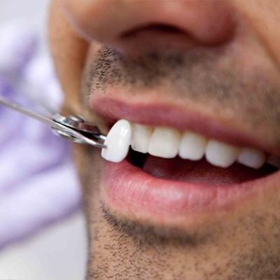 Faccette dentali Roma San Giovanni
