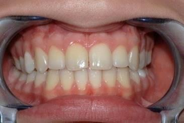 Ortodonzia Fissa Roma