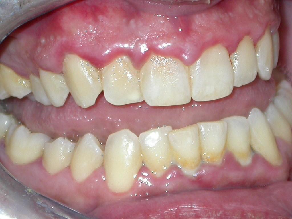 Parodontologia San giovanni