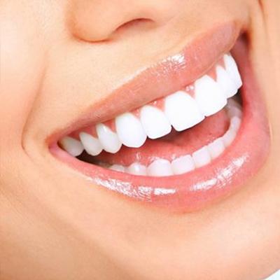 Sbiancamento dentale Roma San Giovanni