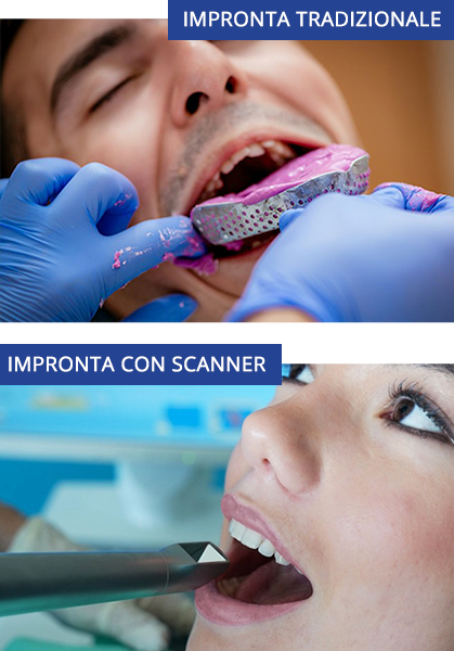 scanner Roma